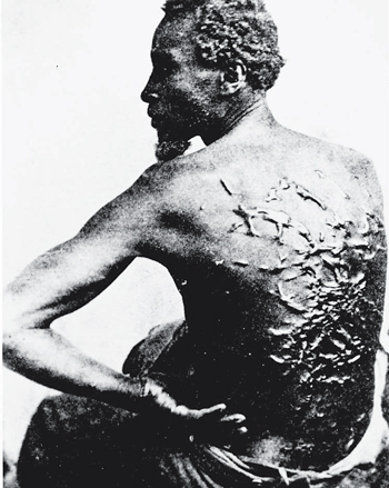 slave_scars_scarred_back