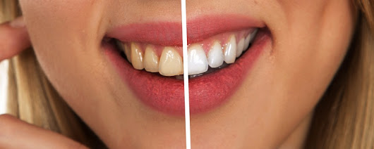 How_To_Remove_Yellow_Stains_From_Teeth