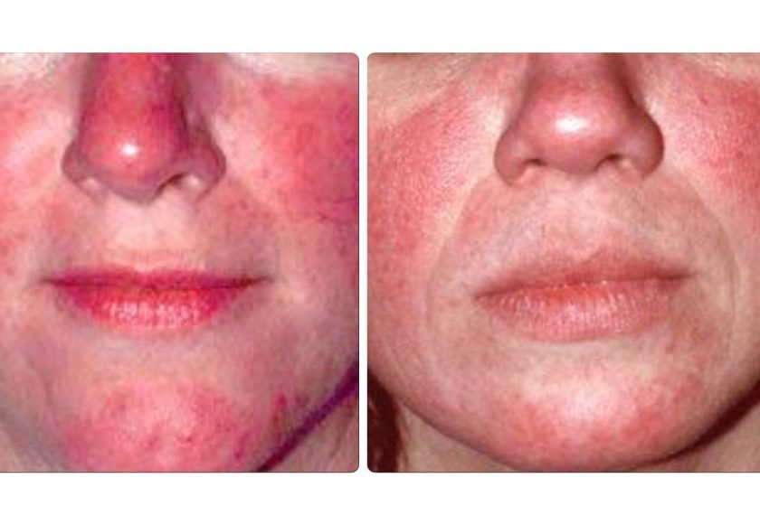 rosacea_skin_before_and_after_treatments